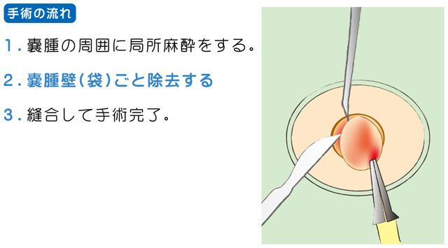 小さい場合には、局所麻酔を行った上で、できるだけ傷口を小さくするように切開して膿を出し、袋状の嚢胞を丁寧に取り除きます。
